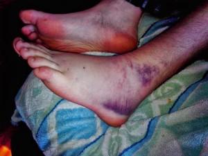 Jakobova nová noha